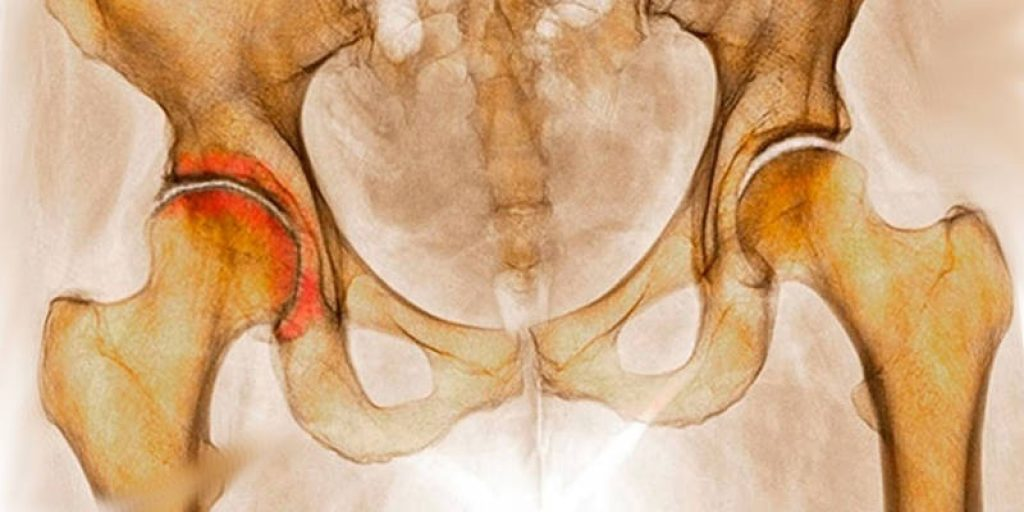 Диспластический двусторонний коксартроз 1 степени причины симптомы лечение и прогноз