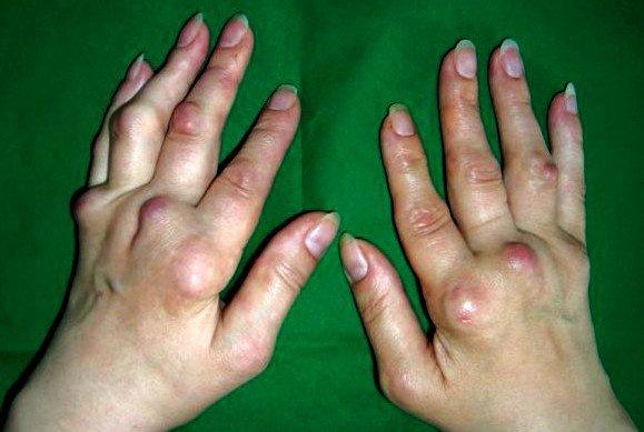 Полиостеоартроз суставов кистей рук лечение