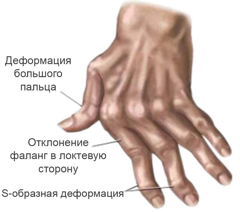 Массаж коленного сустава при артрите польза противопоказания техника выполнения