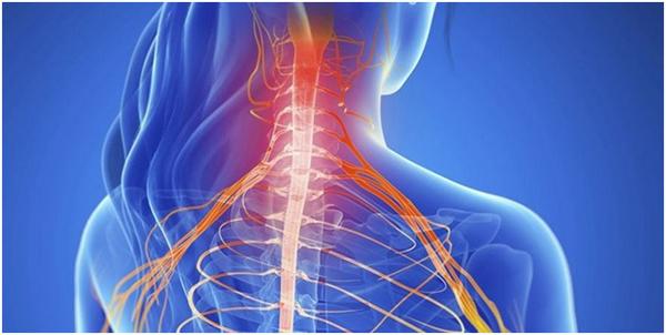 Вторичный корешковый синдром в шейном отделе позвоночника