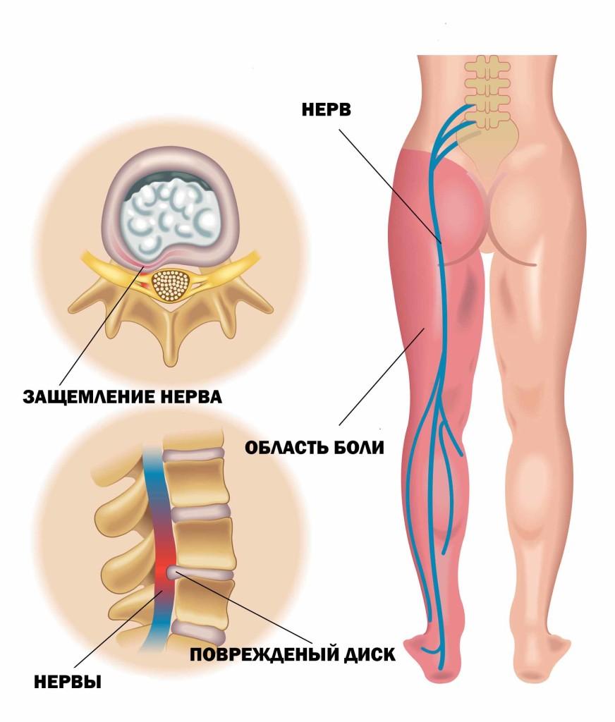 Радикулит симптомы причины диагностика лечение и профилактика