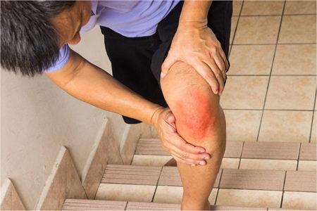Болезнь кенига коленного сустава рентгенологическая картина
