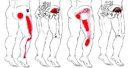 Боль в области таза и отдает в левую ногу