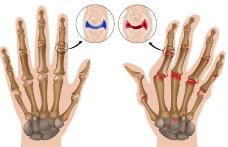Массаж при ревматоидном артрите приемы
