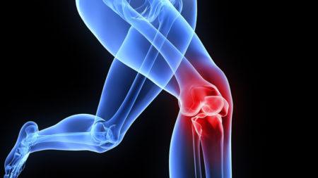 Деформирующий артроз коленного сустава 3 степени инвалидность