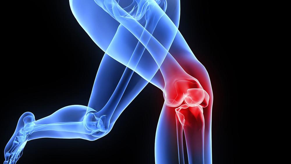 Инвалидность при гонартрозе коленного сустава 2 степени