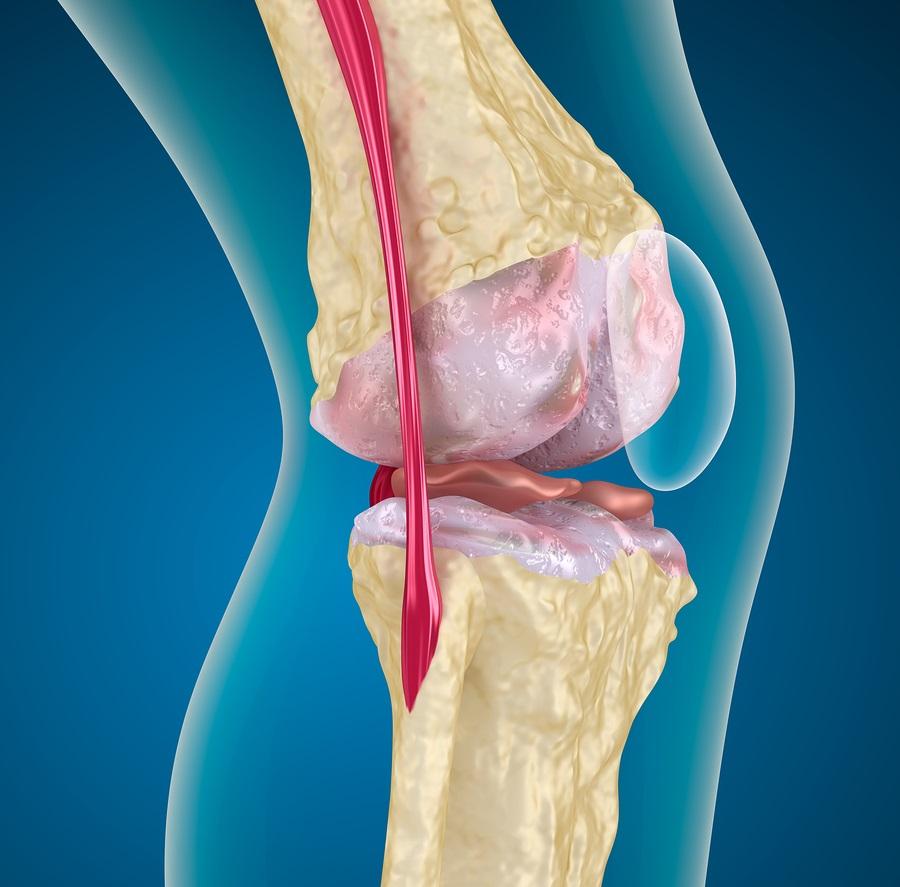 Лигаментоз и лигаментит коленного сустава