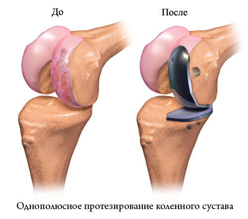 Чем опасна операция по замене коленного сустава