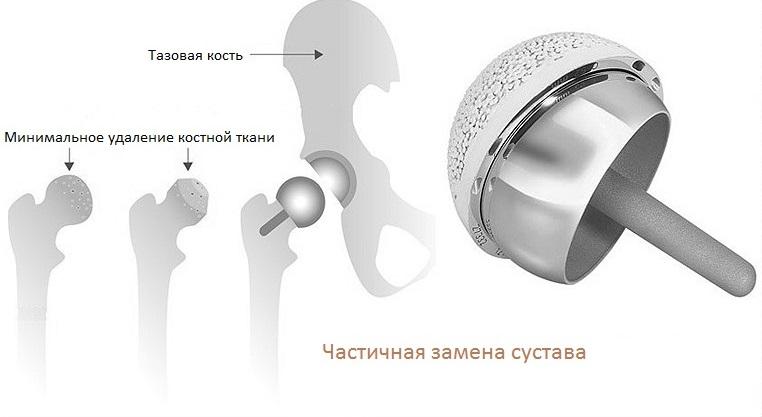 Как проводится замена сустава тазобедренного сустава
