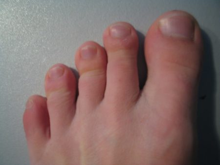 Причины боли в суставе большого пальца на ноге. Воспаление сустава большого пальца ноги. Лечение боли и воспаления сустава большого пальца ноги