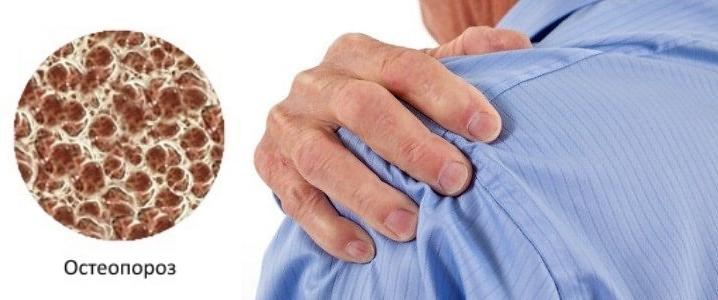 Остеопороз плечевого сустава лечение симптомы причины профилактика