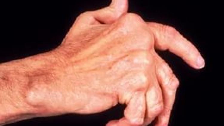 Лечение остеопороза кистей рук лечение симптомы причины профилактика