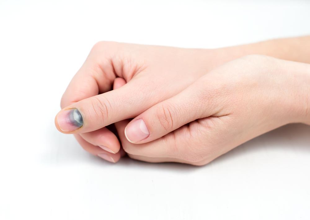 Ушиб большого пальца на руке – как отличить перелом пальца от ушиба, экстренная помощь пострадавшему