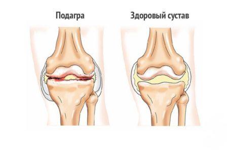 Воспаление сустава пальца ноги - как быстро снять воспаление?