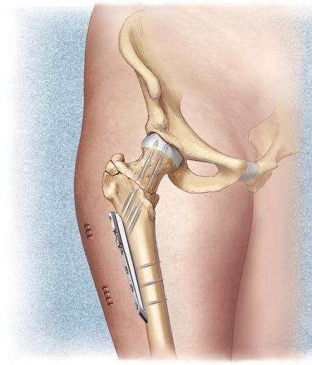 Операция тазобедренного сустава осложнения