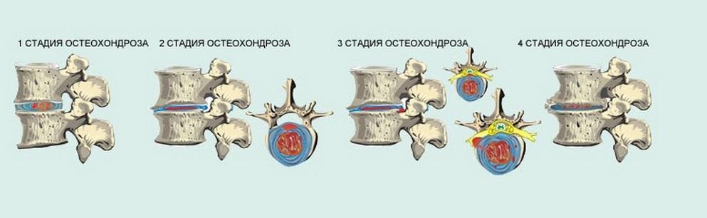 Остеохондроз 3 степени причины проявления диагностика лечение