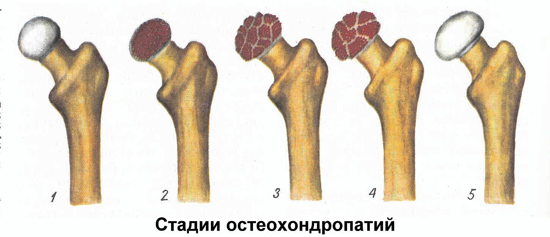 Лечение хондропатии коленного сустава народными средствами и профилактика