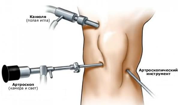 Реабилитация после артроскопии мениска коленного сустава