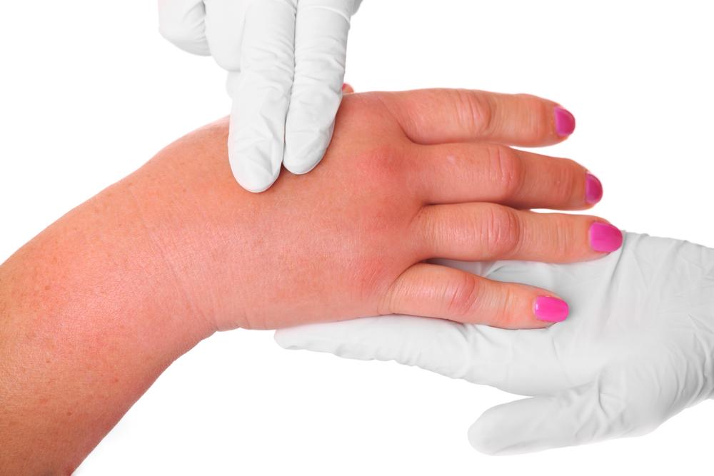 Почему опухают пальцы на руках – распространенные причины возникновения патологии