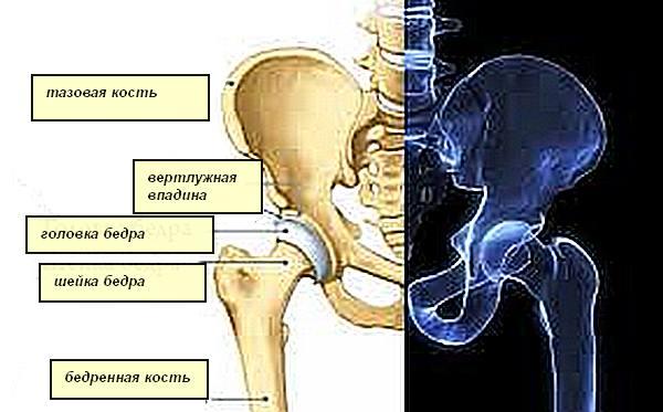 Вывих тазобедренного сустава у взрослых после операции