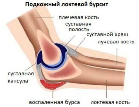 Как называется болезнь локтевого сустава