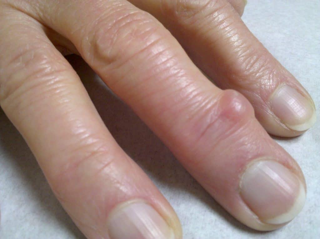 Гигрома пальца руки: лечение, причины и симптомы