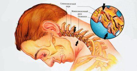 Болит шея сзади и челюсть что это