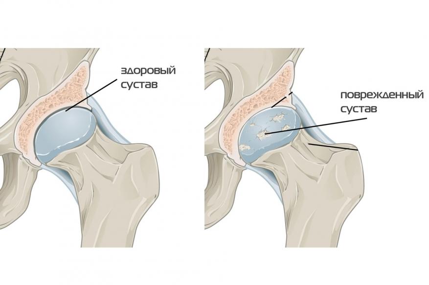 Коксартроз тазобедренного сустава 3 степени – лечение без операции проходит длительно