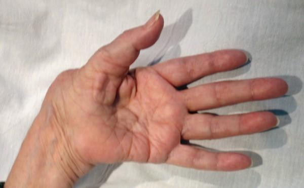 Причины развития артроза лучезапястного сустава методы лечения