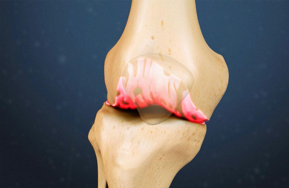 Как избавиться от остеофитов в колене