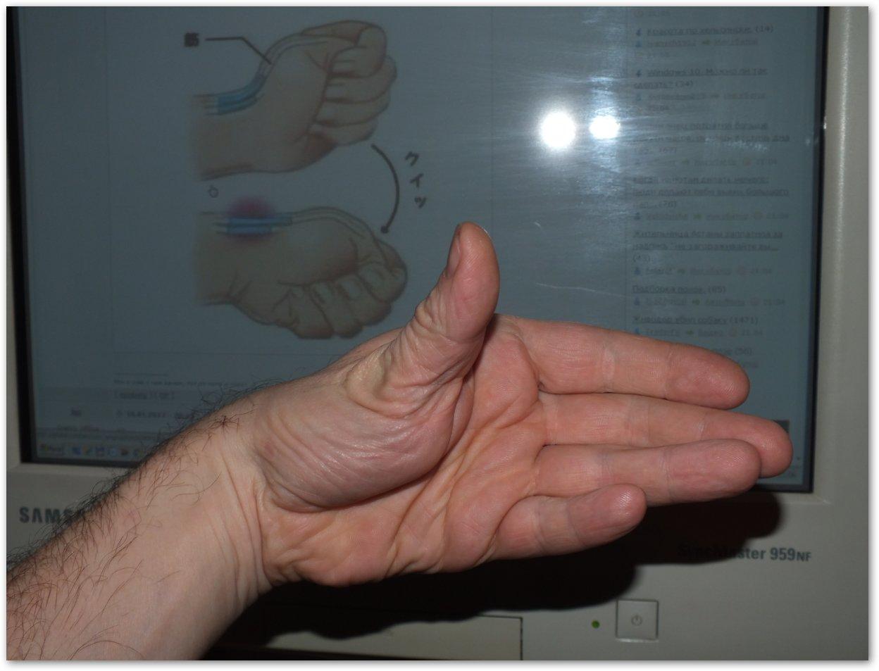 Вывих пальца на руке симптомы лечение фото