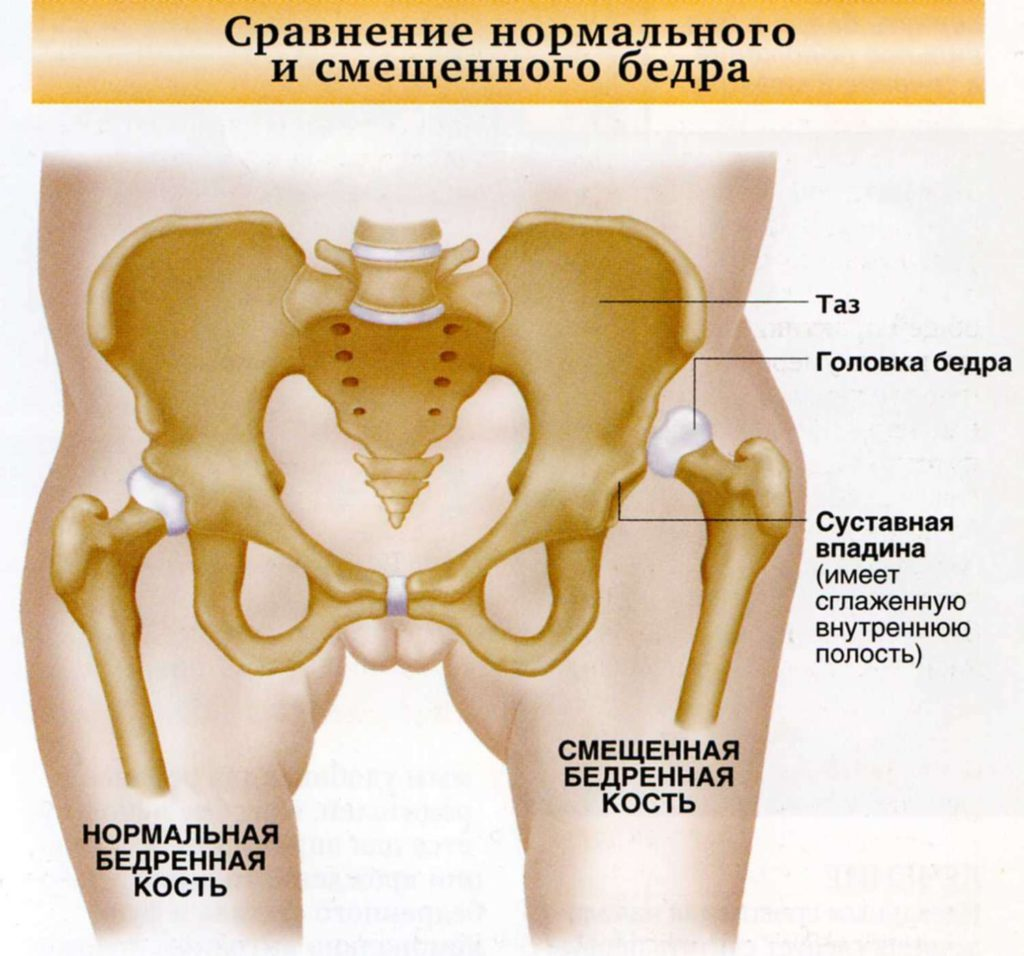 Вывих тазобедренного сустава у взрослых симптомы