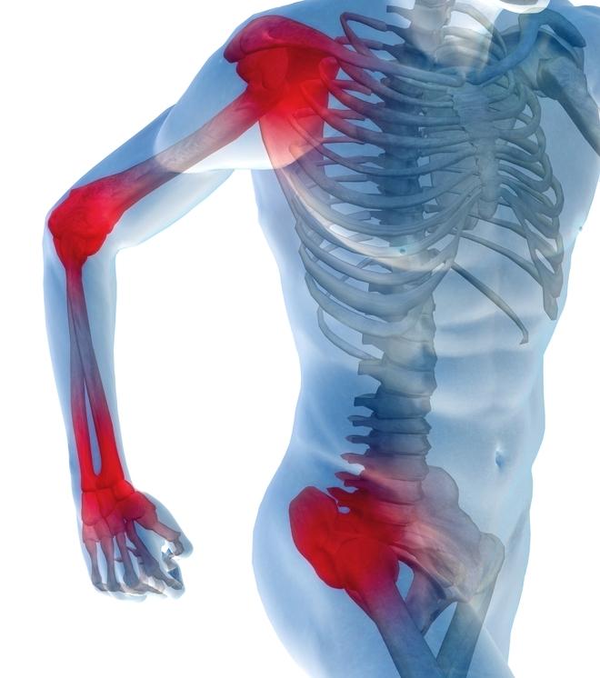Блуждающая боль в суставах и мышцах причины симптоматика и лечение
