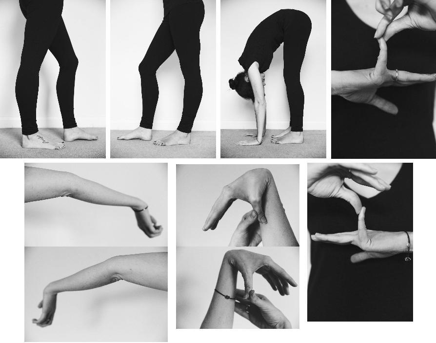 Гиперактивные суставы фото