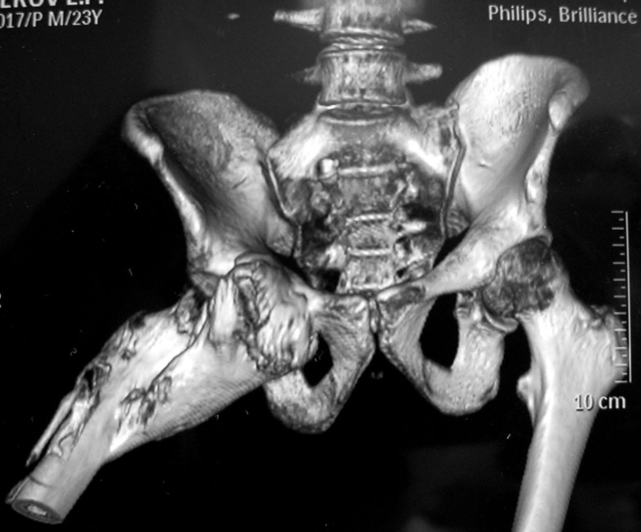 Задержка развития ядер окостенения тазобедренных суставов