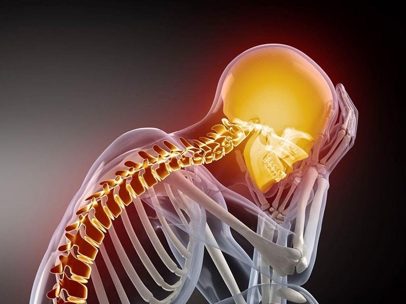 Цервикалгия шейного отдела позвоночника: лечение, симптомы, причины
