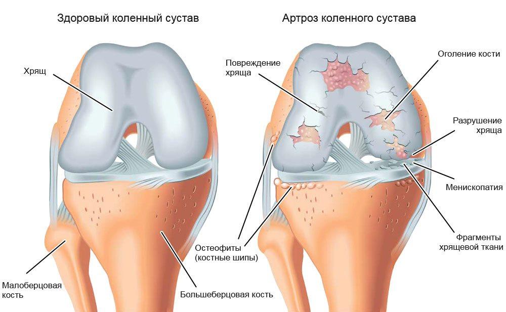 Что такое посттравматический артроз остеоартроз и как его лечить