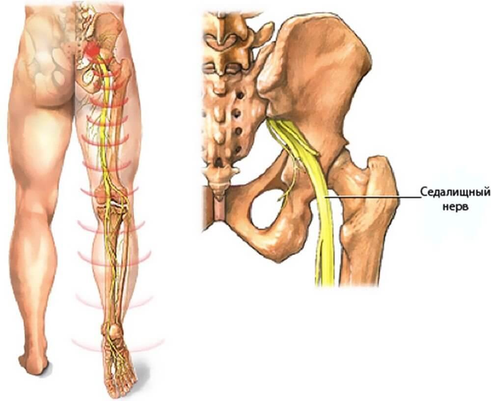 Могут ли болеть суставы на нервной почве: лечение