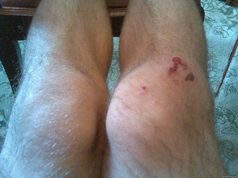 Шишка под коленом сзади что это может быть лечение