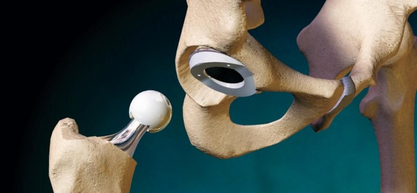 Какие костыли использовать после замены тазобедренного сустава