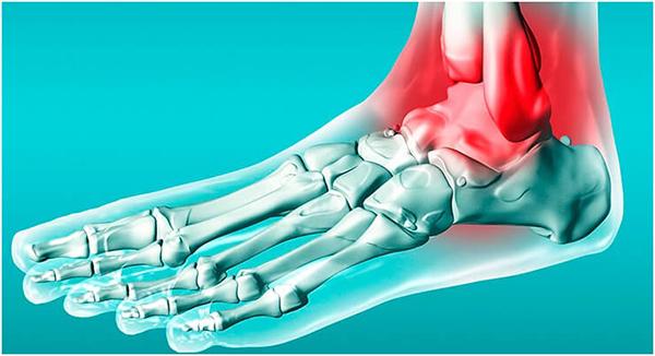 Эпифизеолиз лодыжки у детей — Здоровье ног