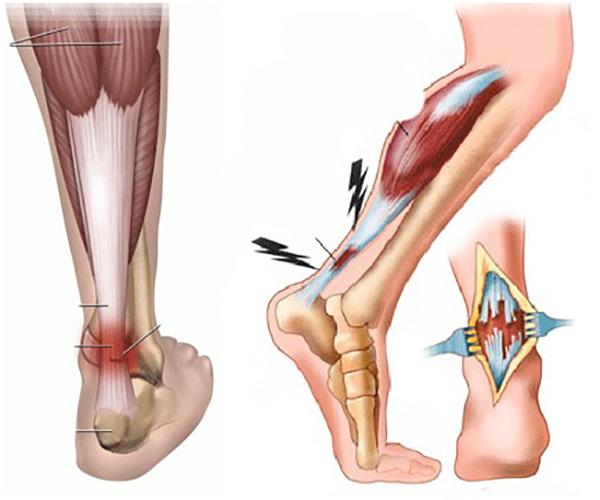 Растяжение ахиллова сухожилия – симптомы, оказание помощи и методы дальнейшей коррекции