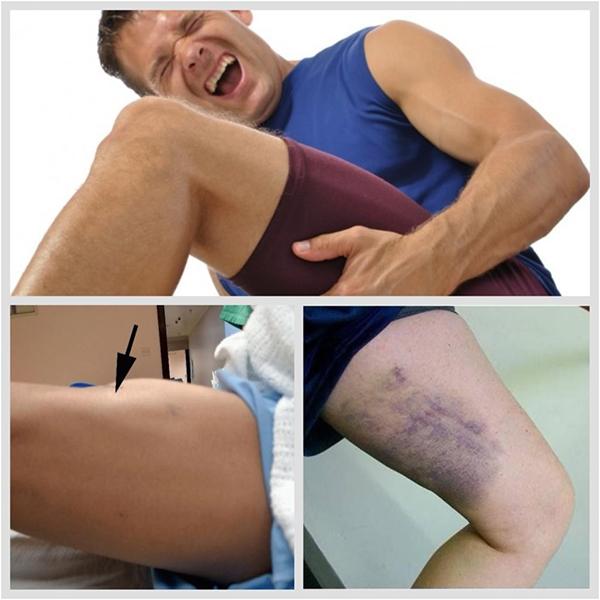 Растяжение связок тазобедренного сустава: симптомы, лечение