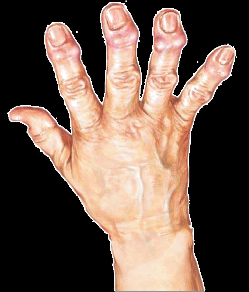 Боли в лучезапястном суставе – причины возникновения, сопутствующая симптоматика, методы диагностики и лечения