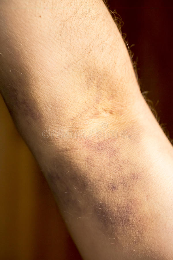 Ушиб ладони симптоматика причины лечение профилактика