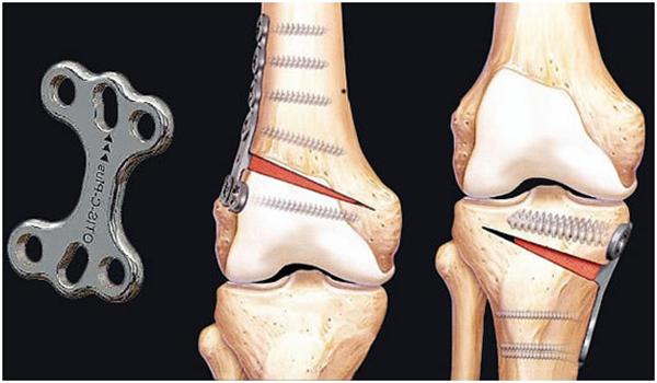 Корригирующая остеотомия коленного сустава