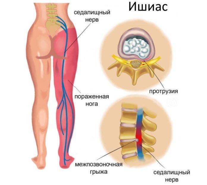 Защемление нерва в тазобедренном суставе причины симптомы и лечение ущемления