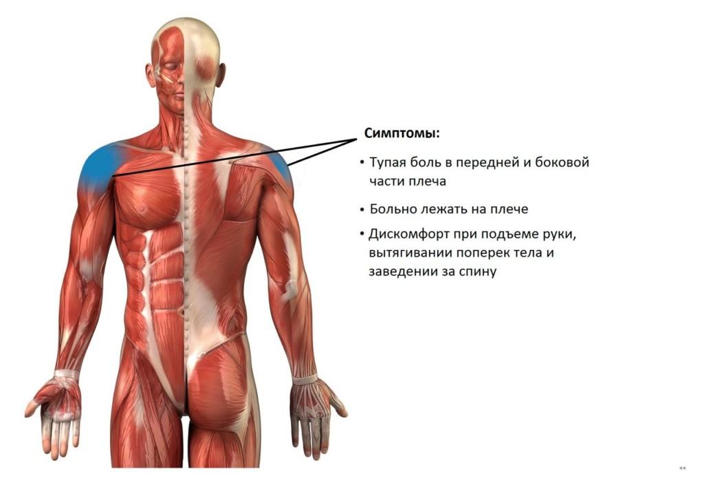 Импинджмент-синдром плечевого сустава - симптомы и лечение