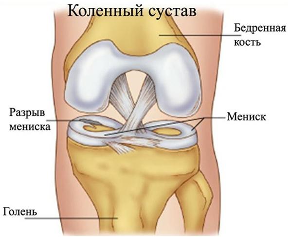 Менископатия коленного сустава: что это такое, симптомы и лечение