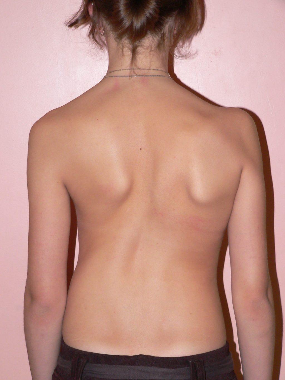 При сколиозе болит грудная клетка